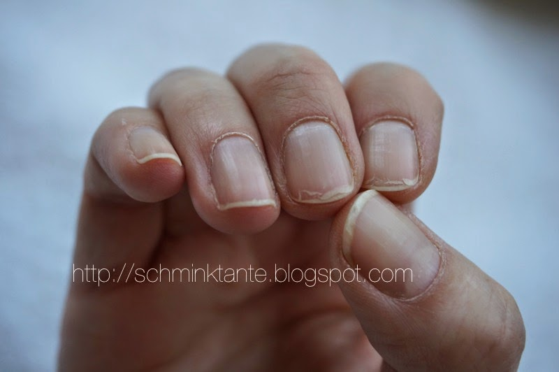Mein persönliches Desaster zum Thema Fingernägel...