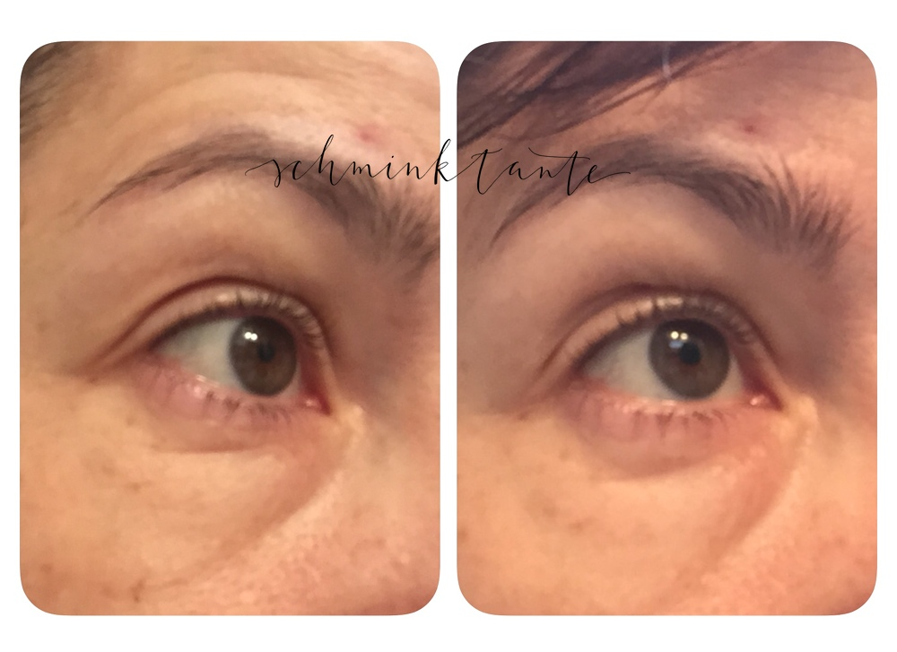 Teoxane, Augenpflege, RHA Advanced Eye Contour