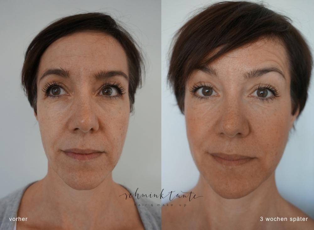 Faltenbehandlung, Juvéderm, Botox, Hyaluron, Anti Aging, Faltenunterspritzung