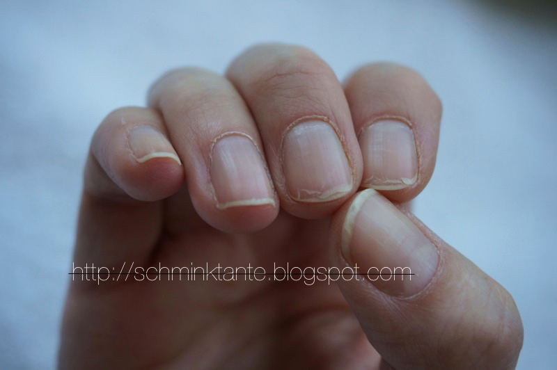 Fingernägel, Splitternägel, Nägel, Hände, Maniküre, Handpflege, Nagellack, Pflegelack, Sally Hansen